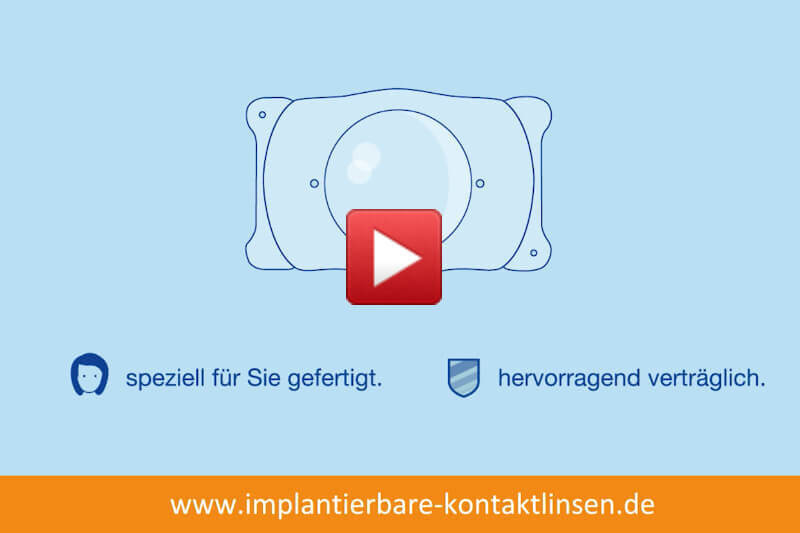 Video: Was sind implantierbare Kontaktlinsen?