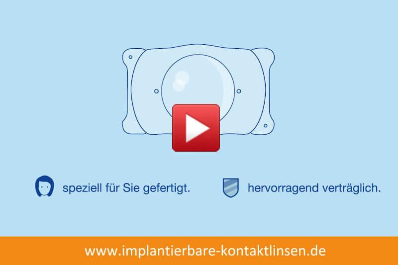 Video: Was sind implantierbare Kontaktlinsen?